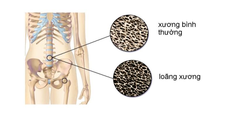Lợi ích của MK7 là dự phòng và giúp điều trị loãng xương, còi xương, gãy xương, giúp xây dựng và bảo vệ xương khỏe mạnh