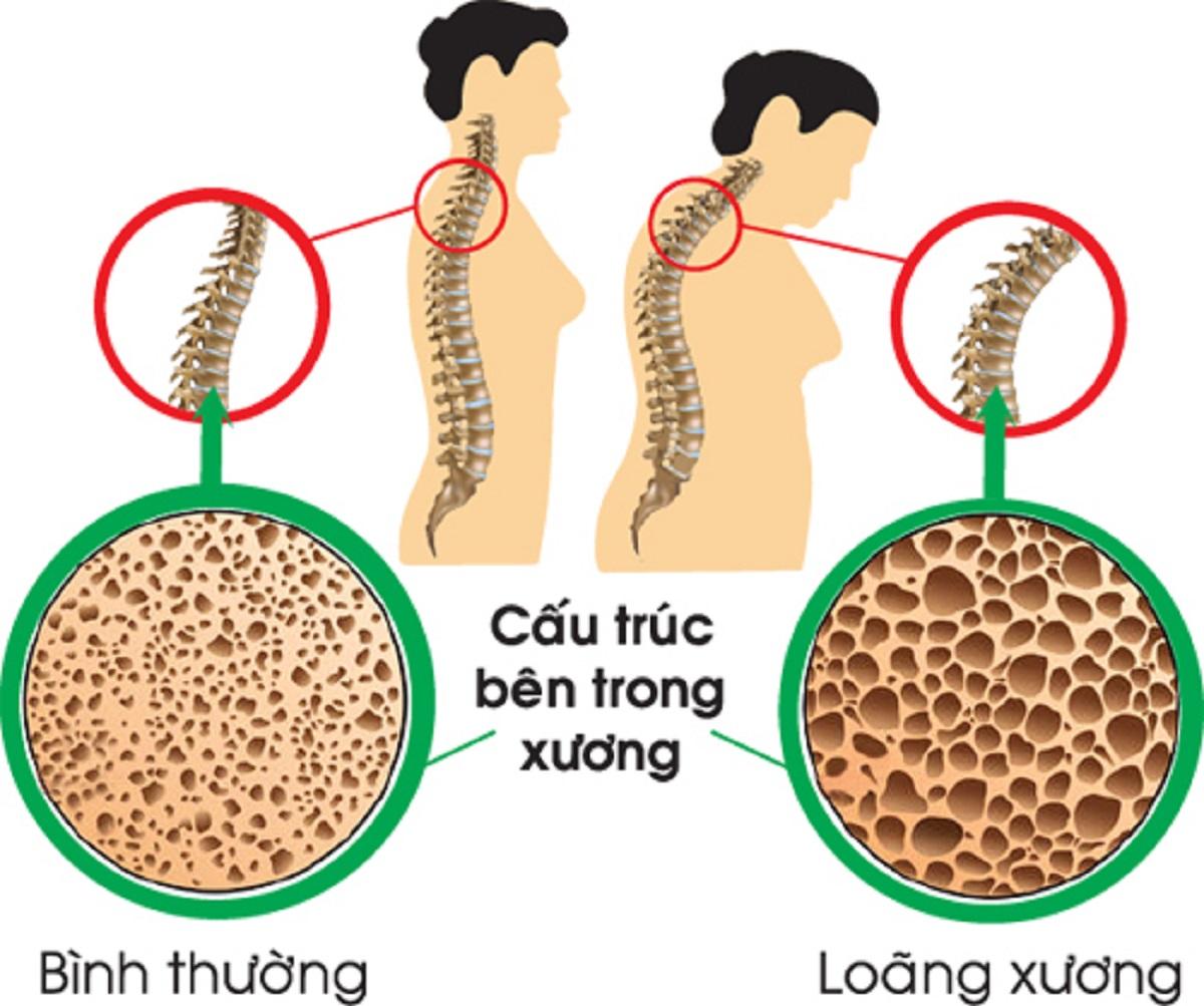 cấu trúc xương người bình thường (trái) và bệnh nhân loãng xương (phải)
