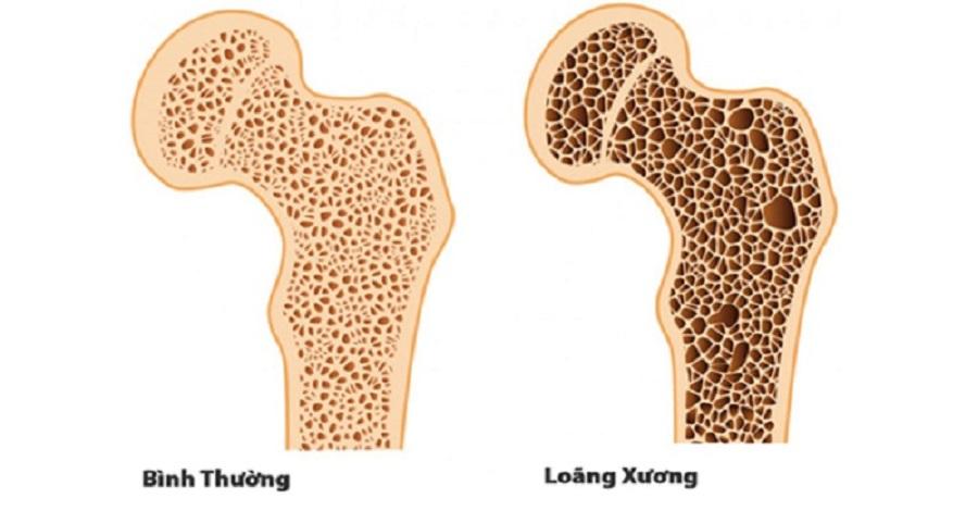 cấu trúc xương ở người bình thường và bệnh nhân loãng xương
