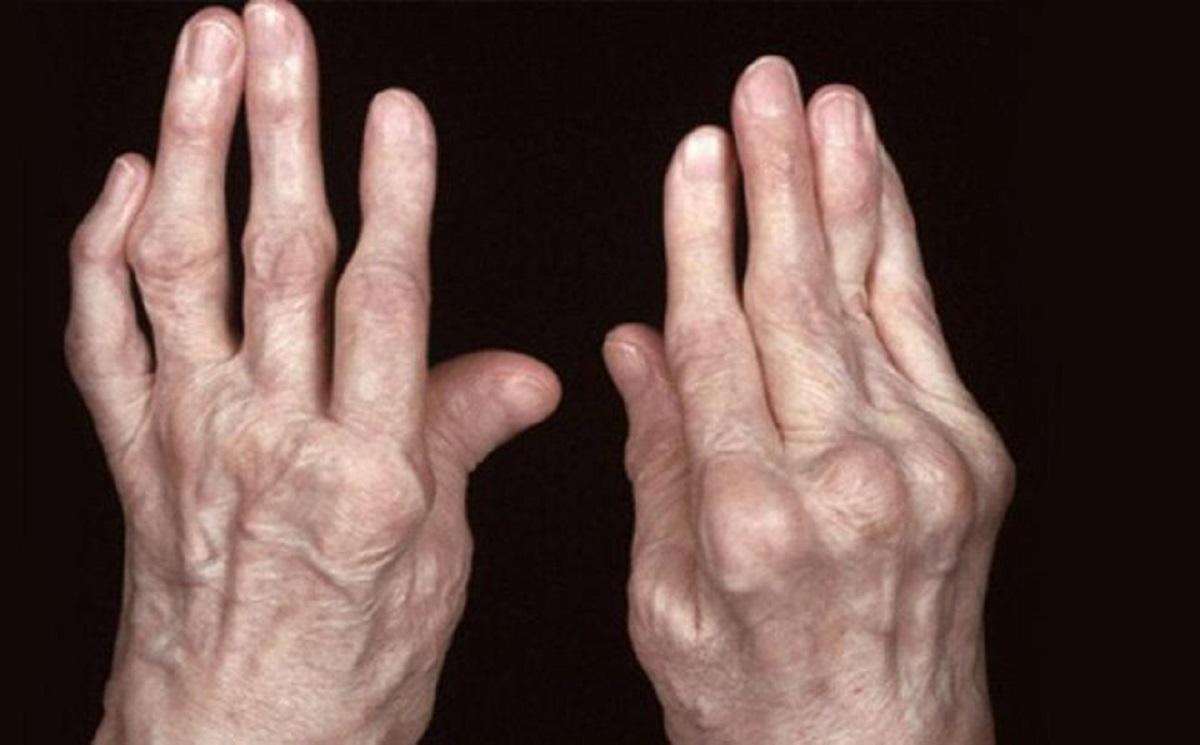 Viêm khớp dạng thấp phải sử dụng nhiều corticoid và là nguyên nhân gây bệnh loãng xương ở người trẻ tuổi