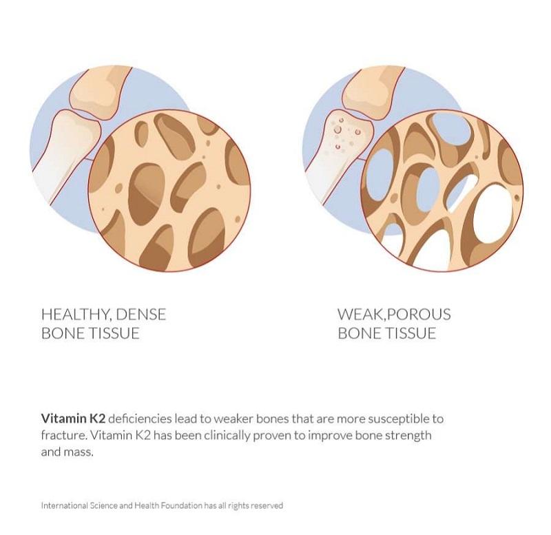 Vitamin K2 có tác dụng cải thiện mật độ khoáng xương, làm giảm sự mất xương và làm giảm đáng kể nguy cơ gãy xương.