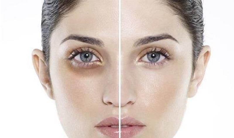 vitamin K có tác dụng giảm quầng thâm mắt