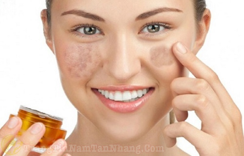vitamin K giúp phục hồi nám sau khi bắn laser