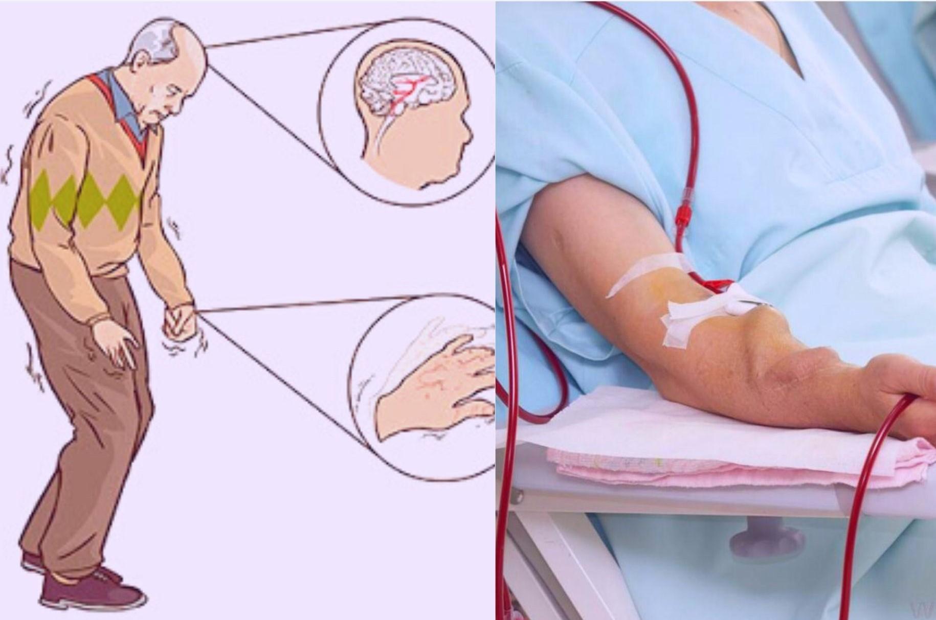 vitamin K2 có thể phá hủy tác động của một trong những khiếm khuyết di truyền dẫn đến bệnh Parkinson.nồng độ MGP không hoạt động có thể giảm rõ rệt bệnh thận mãn tính.