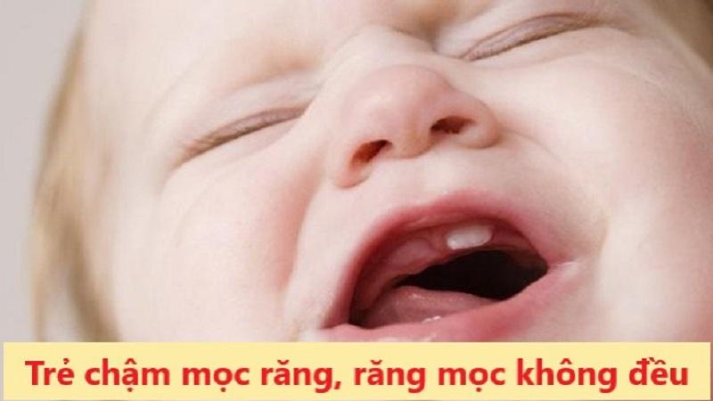 Trẻ sau 12 tháng không mọc răng sữa được coi là chậm mọc răng