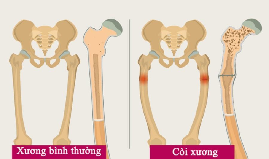 hình ảnh xương trẻ bình thường và trẻ bị còi xương