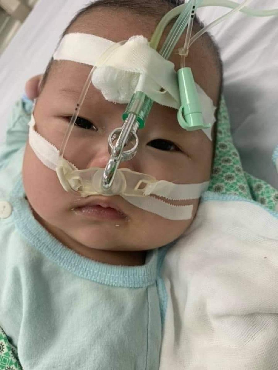 1 trường hợp trẻ mắc virus hợp bào hô hấp