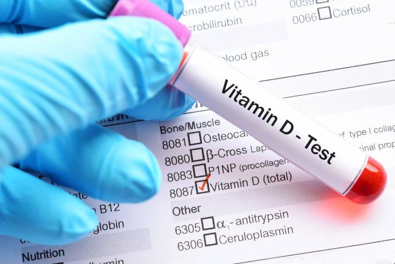 Tỷ lệ người thiếu vitamin D rất cao